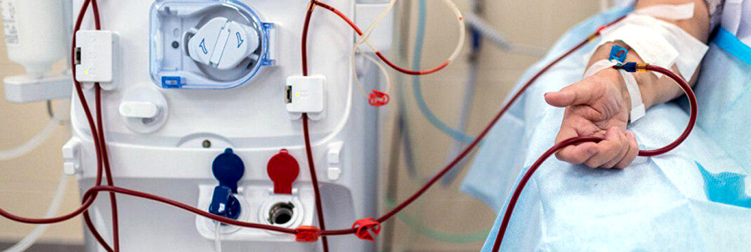 Study Critique Acute Renal Failure in Critically Ill Patients